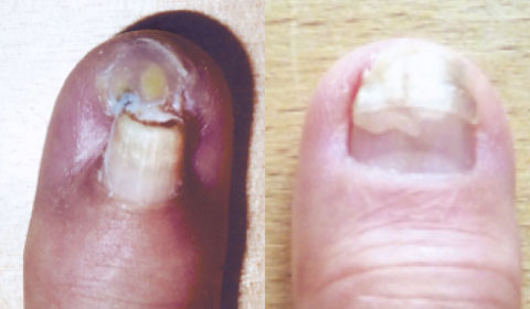 Finger-nail Beginning and after 7 months BS treatment