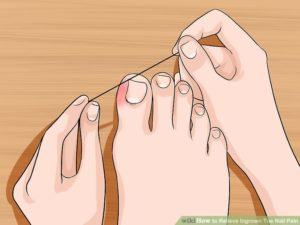 Dental Floss Really Works For Ingrown Toenails